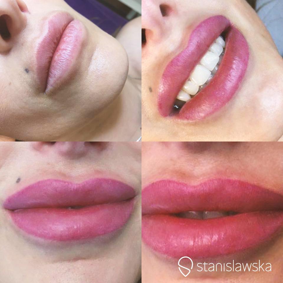 Zdjęcia u góry ukazują wygląd ust względem części twarzy, dolne skupiają się na detalu.